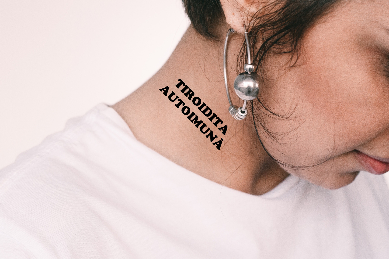 vedere tiroidită autoimună